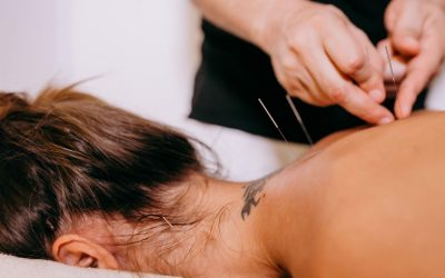 Clinical Acupuncture for Insomnia